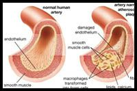 Endothelium_and_Toxic_Heavy_Metals