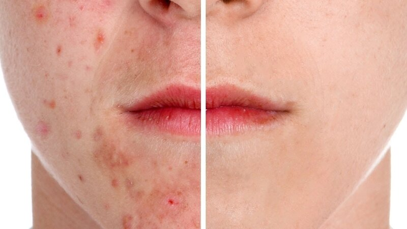 How-to-Remove-Acne-in-Photoshop
