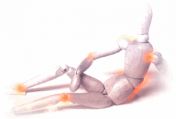 250px-Arthrose