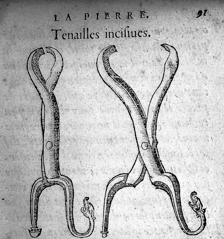 Forceps_-_used_for_stone_in_the_bladder,_16th_Century_Wellcome_L0004873