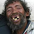 @ implants ...poil aux dents !