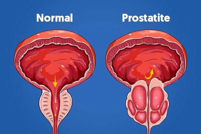 PROSTATITE2