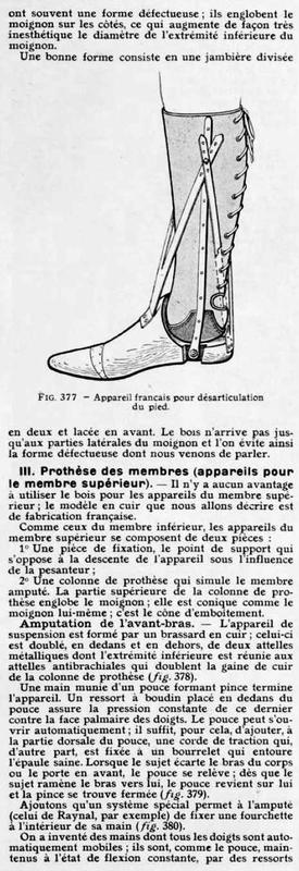 prothèses de membres12