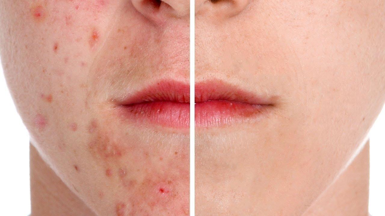 Dossier complet sur l acné - Tous les chemins mènent à la santé ! bd995ff8e24