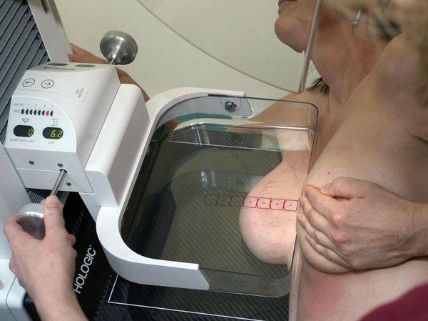Mammographie_19349184originallarge-4-3-800-0-0-2535-1899