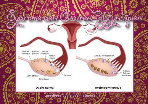 Syndrome des ovaires polykystiques SPOK et hijama