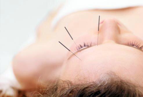 J'ai testé... l'acupuncture #2