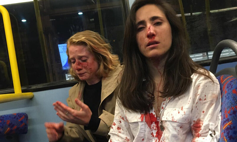 Melania Geymonat right and her girlfriend Chris after they were attacked on a bus in a homophobic assault