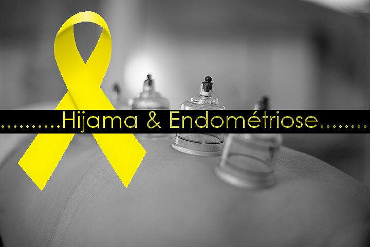 hijama et endometriose