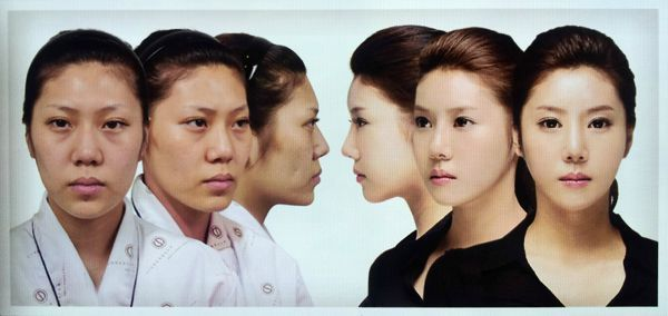 korean plastic surgery 4