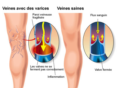 varices_animation