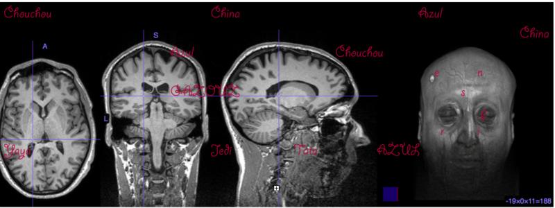 coupe cerveau avec mots kabyle