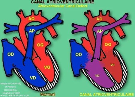 canal_atrioventriculaire[1]