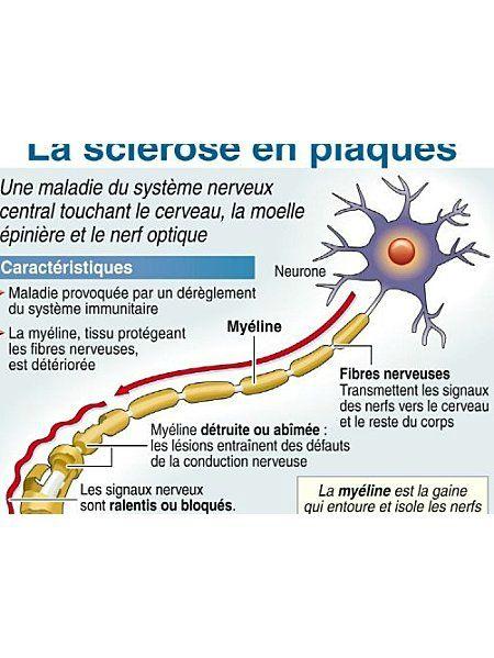 myeline
