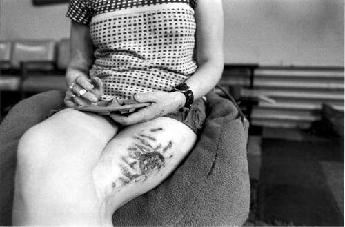 Woman With Scarred Leg 1976